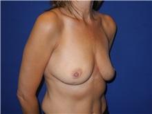 Breast Augmentation Before Photo by Shahram Salemy, MD  FACS; Seattle, WA - Case 33349