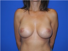 Breast Augmentation After Photo by Shahram Salemy, MD  FACS; Seattle, WA - Case 33349