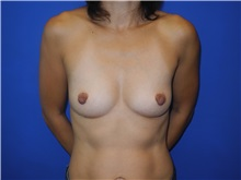 Breast Augmentation Before Photo by Shahram Salemy, MD  FACS; Seattle, WA - Case 33350