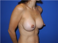Breast Augmentation After Photo by Shahram Salemy, MD  FACS; Seattle, WA - Case 33350