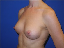 Breast Augmentation After Photo by Shahram Salemy, MD  FACS; Seattle, WA - Case 33351