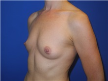 Breast Augmentation Before Photo by Shahram Salemy, MD  FACS; Seattle, WA - Case 33351