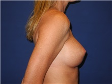 Breast Augmentation After Photo by Shahram Salemy, MD  FACS; Seattle, WA - Case 33526