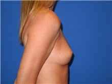 Breast Augmentation Before Photo by Shahram Salemy, MD  FACS; Seattle, WA - Case 33526