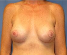 Breast Lift After Photo by Samuel Lien, MD; Everett, WA - Case 39072