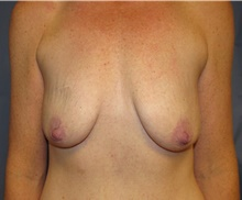 Breast Lift Before Photo by Samuel Lien, MD; Everett, WA - Case 39072