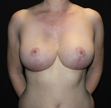 Breast Reduction After Photo by David Boudreault, MD; PALO ALTO, CA - Case 35523