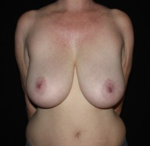 Breast Reduction Before Photo by David Boudreault, MD; PALO ALTO, CA - Case 35523