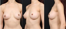 Breast Augmentation After Photo by Chi Chen Huang, MD; Taichung City,  - Case 29981