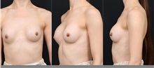 Breast Augmentation Before Photo by Chi Chen Huang, MD; Taichung City,  - Case 29981