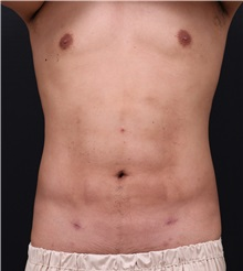 Body Contouring After Photo by Chi Chen Huang, MD; Taichung City,  - Case 35854