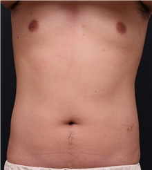 Body Contouring Before Photo by Chi Chen Huang, MD; Taichung City,  - Case 35854