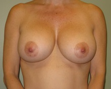 Breast Augmentation After Photo by Badar Jan, MD; Allentown, PA - Case 30980