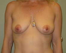 Breast Augmentation Before Photo by Badar Jan, MD; Allentown, PA - Case 30980
