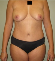 Tummy Tuck After Photo by Badar Jan, MD; Allentown, PA - Case 30981