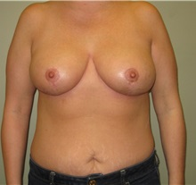 Breast Reduction After Photo by Badar Jan, MD; Allentown, PA - Case 30993