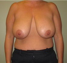 Breast Reduction Before Photo by Badar Jan, MD; Allentown, PA - Case 30993