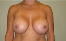 Breast Augmentation After Photo by Badar Jan, MD; Allentown, PA - Case 30995