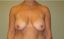 Breast Augmentation Before Photo by Badar Jan, MD; Allentown, PA - Case 30995