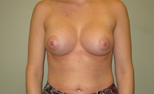 Breast Augmentation After Photo by Badar Jan, MD; Allentown, PA - Case 30996