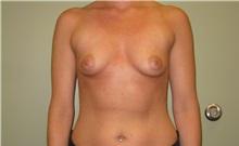 Breast Augmentation Before Photo by Badar Jan, MD; Allentown, PA - Case 30996