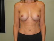 Breast Augmentation After Photo by Badar Jan, MD; Allentown, PA - Case 30997