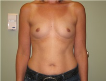 Breast Augmentation Before Photo by Badar Jan, MD; Allentown, PA - Case 30997