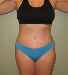Tummy Tuck After Photo by Badar Jan, MD; Allentown, PA - Case 35087