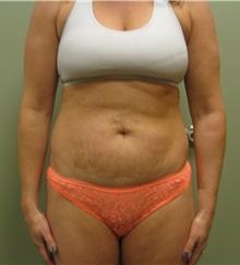 Tummy Tuck Before Photo by Badar Jan, MD; Allentown, PA - Case 35087