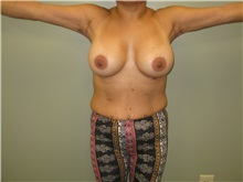 Arm Lift After Photo by Badar Jan, MD; Allentown, PA - Case 37186