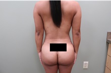 Buttock Lift with Augmentation After Photo by Badar Jan, MD; Allentown, PA - Case 44718