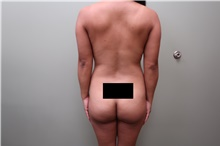 Buttock Lift with Augmentation Before Photo by Badar Jan, MD; Allentown, PA - Case 44718