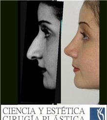 Rhinoplasty After Photo by Luis Pavajeau, MD; Bogota, CU - Case 31675