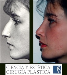 Rhinoplasty Before Photo by Luis Pavajeau, MD; Bogota, CU - Case 31675