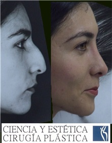 Rhinoplasty Before Photo by Luis Pavajeau, MD; Bogota, CU - Case 31677