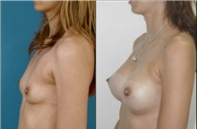 Breast Augmentation After Photo by Luis Pavajeau, MD; Bogota, CU - Case 31690