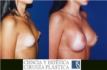 Breast Augmentation Before Photo by Luis Pavajeau, MD; Bogota, CU - Case 31690