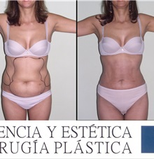 Liposuction After Photo by Luis Pavajeau, MD; Bogota, CU - Case 31691