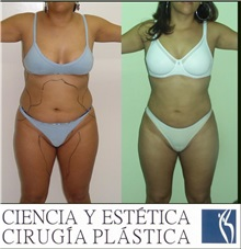 Liposuction Before Photo by Luis Pavajeau, MD; Bogota, CU - Case 31691