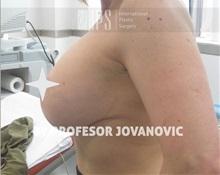 Breast Lift After Photo by Milan Jovanovic, MD, PhD; Belgrade,  - Case 37784