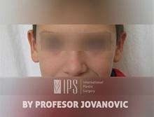 Ear Reconstruction Surgery After Photo by Milan Jovanovic, MD, PhD; Belgrade,  - Case 37823