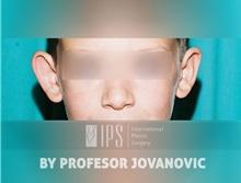 Ear Reconstruction Surgery Before Photo by Milan Jovanovic, MD, PhD; Belgrade,  - Case 37823