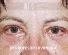 Eyelid Ptosis Repair After Photo by Milan Jovanovic, MD, PhD; Belgrade,  - Case 37824