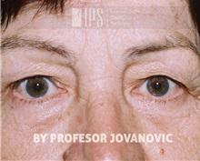 Eyelid Ptosis Repair Before Photo by Milan Jovanovic, MD, PhD; Belgrade,  - Case 37824