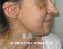 Facial Implants After Photo by Milan Jovanovic, MD, PhD; Belgrade,  - Case 37826