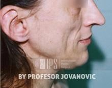 Facial Implants Before Photo by Milan Jovanovic, MD, PhD; Belgrade,  - Case 37826
