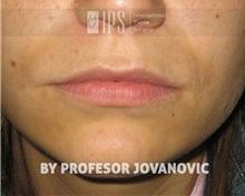 Lip Augmentation / Enhancement Before Photo by Milan Jovanovic, MD, PhD; Belgrade,  - Case 37827