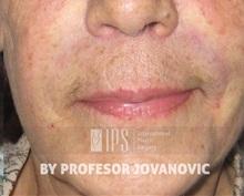 Dermal Fillers After Photo by Milan Jovanovic, MD, PhD; Belgrade,  - Case 37828