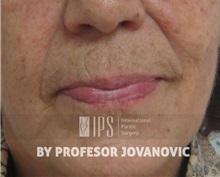 Dermal Fillers Before Photo by Milan Jovanovic, MD, PhD; Belgrade,  - Case 37828