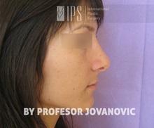 Rhinoplasty After Photo by Milan Jovanovic, MD, PhD; Belgrade,  - Case 37829